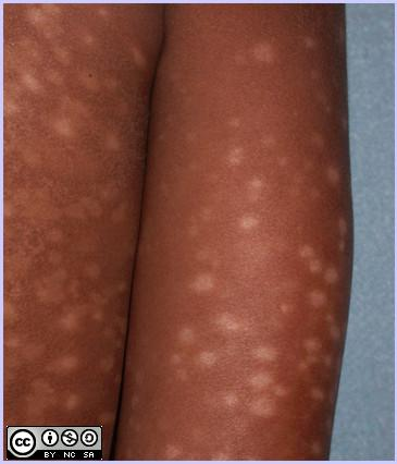 Post-Inflamatory Hypopigmentation